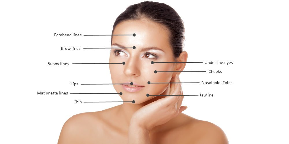 dermal-filler-treatment-areas-wellington-3-